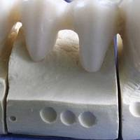 Повече за  Dental Implants Bulgaria 33